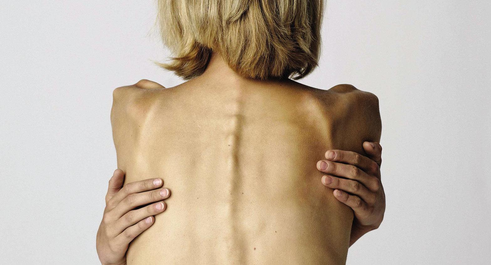 Как определить анорексию